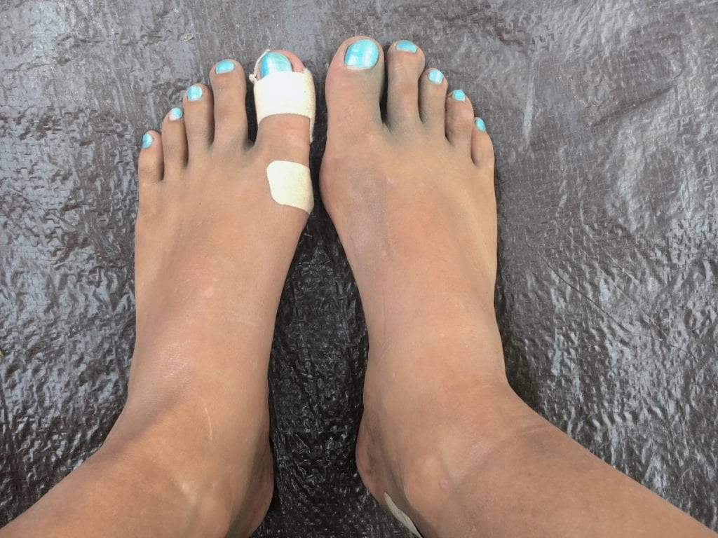 Dirty feet and blisters = Rinjani aftermath